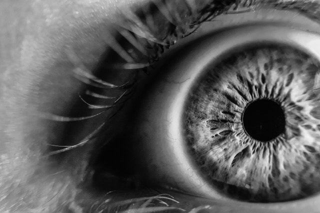 Occhio Secco - Cause